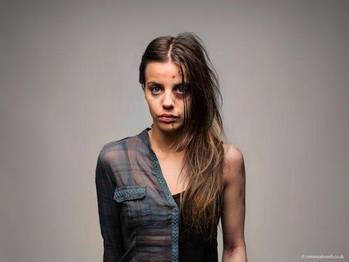 Проект Романа Саковича: Шокирующие фотографии наркоманов