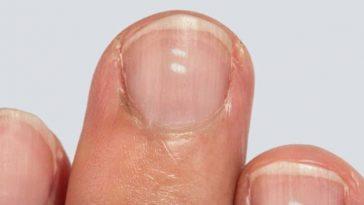 Белые пятна на ногтях действительно признак дефицита кальция?