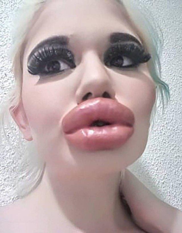 Болгарская девушка с самыми большими губами в мире (21 фото)